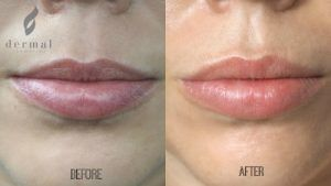 Lip Injection - Before & After
