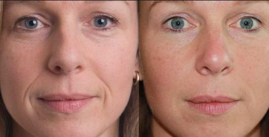 Before & After Filler