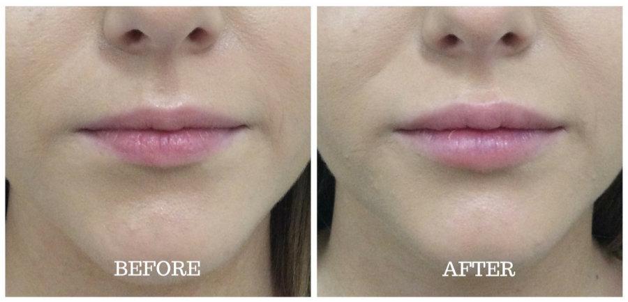 Labios - Antes y Después