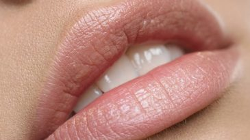 Lip Injections: Before and After and What We Should Expect